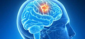 Los agentes de contraste existentes para la resonancia magnética sólo pueden encontrar tumores que sean lo suficientemente grandes como para dañar la barrera hematoencefálica.